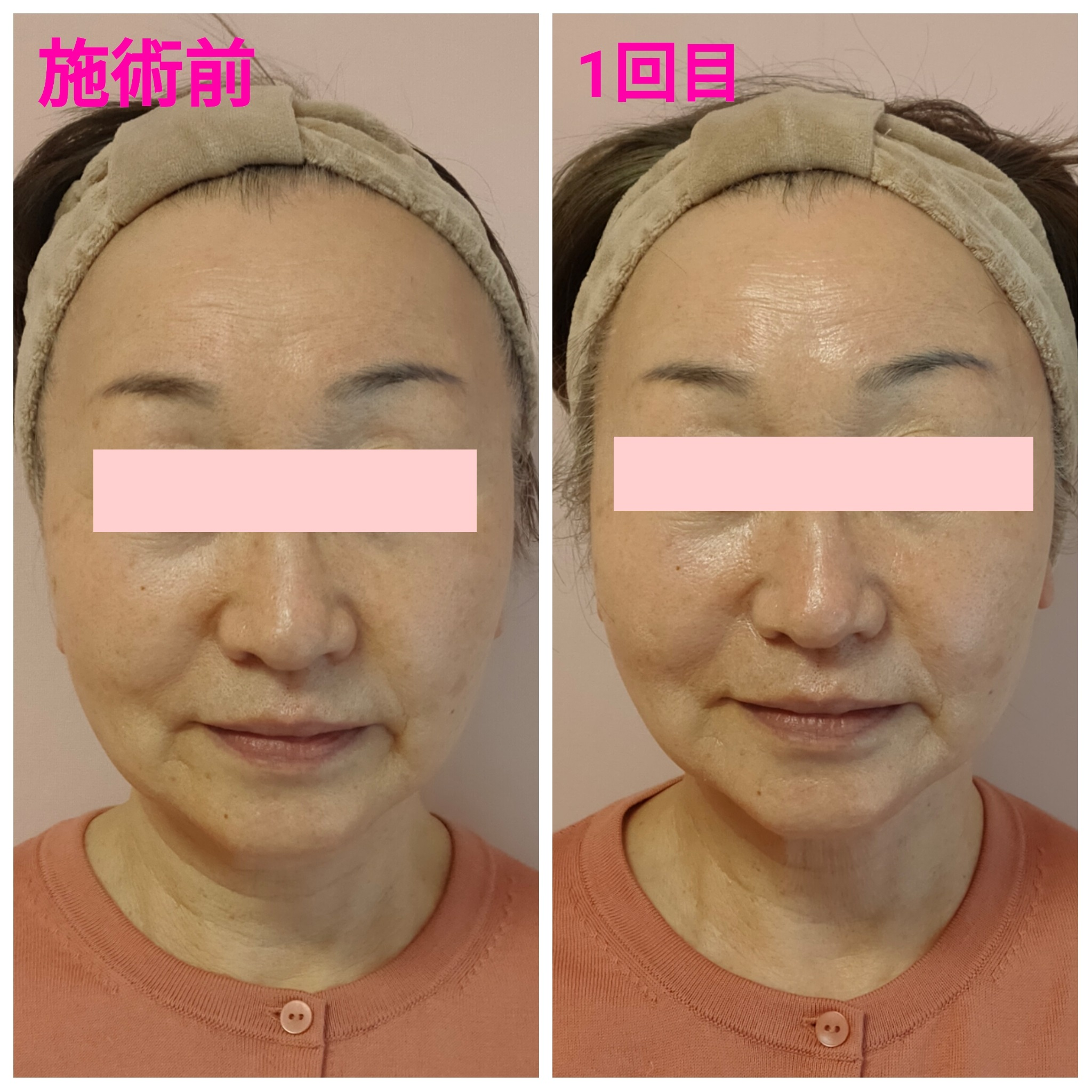 BeforeAfter画像